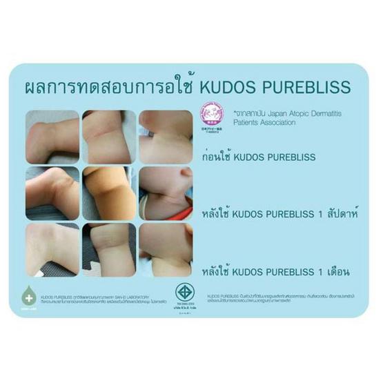 Kudos Purebliss ฝักบัวกรองคลอรีนอันดับ 1 ในญี่ปุ่น